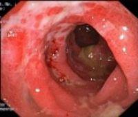 akute Colitis Ulcerosa